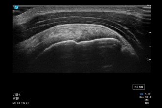 L15-4, MSK Supraspinatus Tendon
